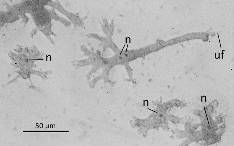 Leptomyxa valladaresi